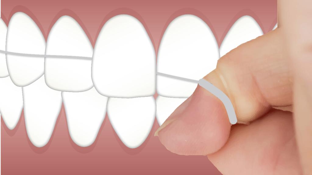 Evitar el miedo al dentista