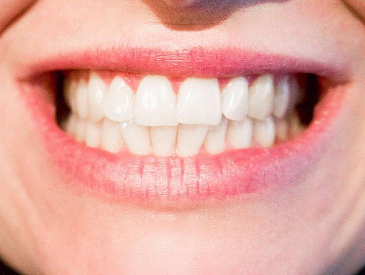 ¿Existe el miedo al dentista?